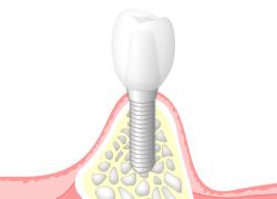 治癒と親和力の高い抜歯即時インプラント